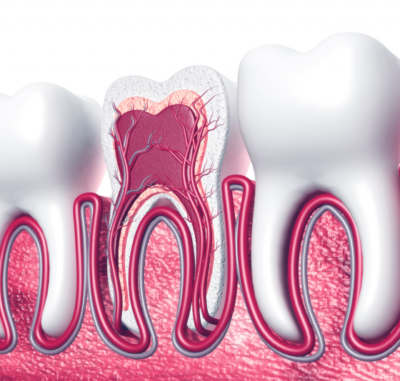 Root Canal Treatment - Cygnet House Dental