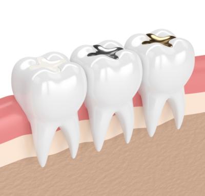 Fillings - Cygnet House Dental
