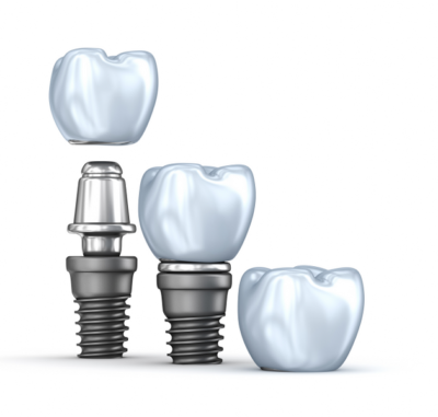 Single Tooth Dental Implant - Cygnet House Dental